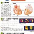 Photos: 核医学(R1)検査 表