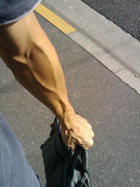 腕なんです