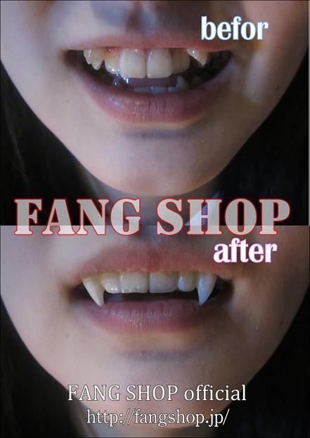 FANG SHOP 付け牙 S-0053(審美的左右側切歯連結Type)(2)