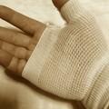 写真: 小指の腱鞘炎