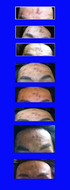 手術ログ2012.09.03-2
